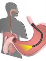 endoscopy clinic toronto